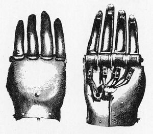 The Steel hand of Carslogie